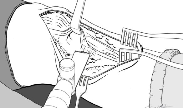 anatomisch illustrator