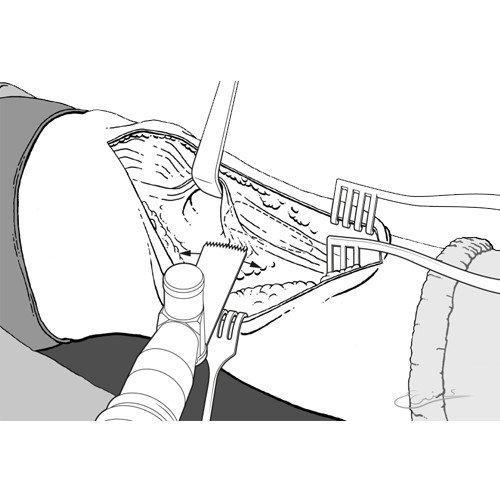 Knie-operatie Lijnillustratie