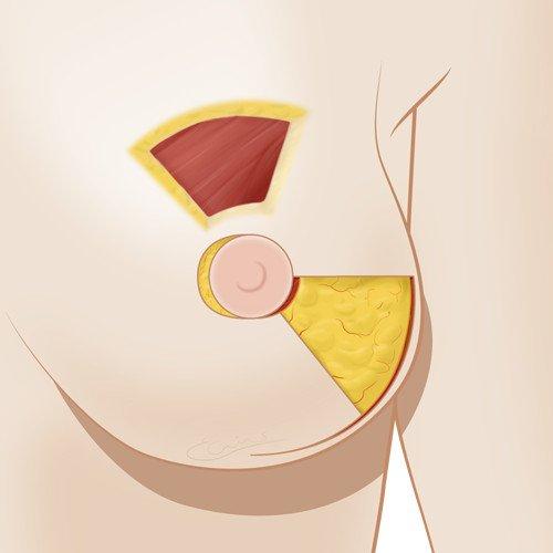 Medical illustration breast reconstruction
